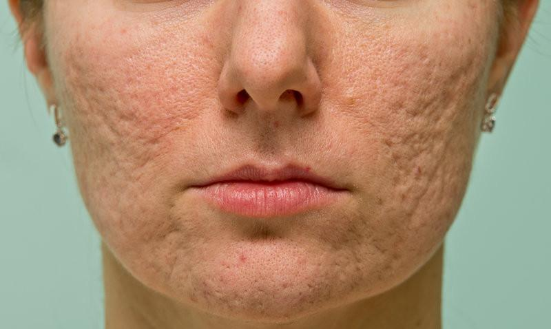 Are Acne Scars Permanent?